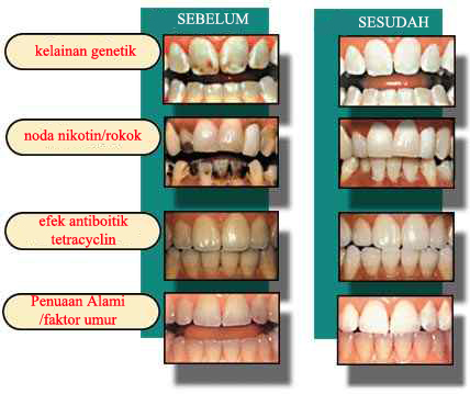 ToothWhitening_image4